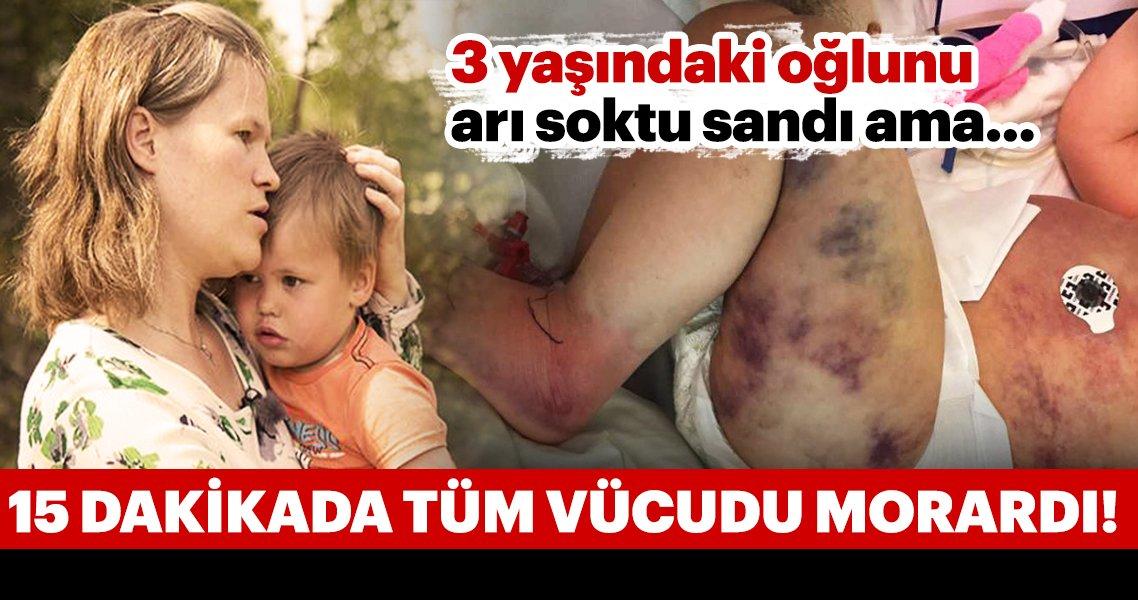 3 yaşındaki oğlunu arı soktu sandı ama bedeni morarmaya başlayınca…