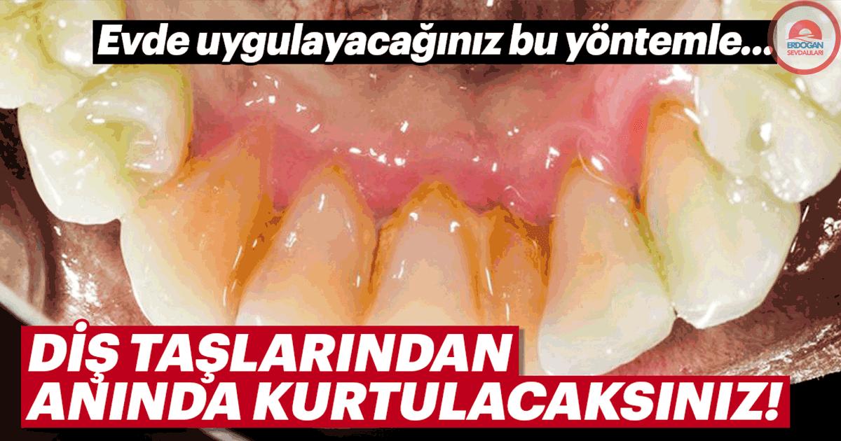 Konutta uygulayacağınız bu usulle diş taşlarından anında kurtulun!