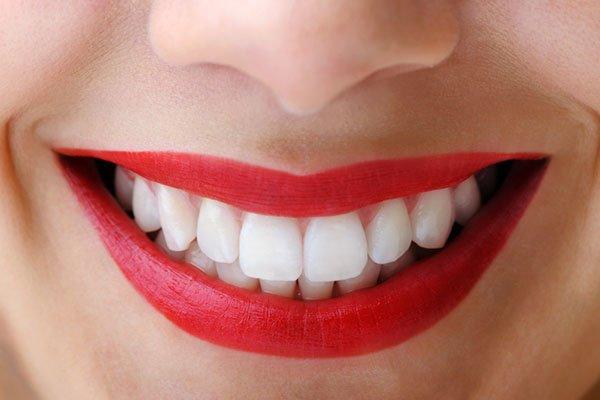 Dişleri beyazlatan gıdalar!