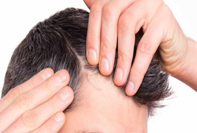 Saç dökülmesini yasaklayan yiyecekler