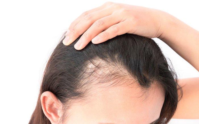 Saç Dökülmesine Karşı 5 Gıda