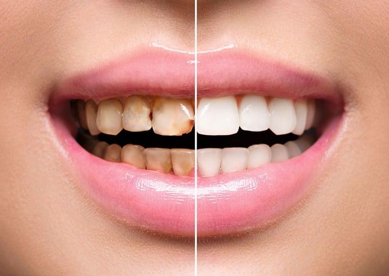 Diş taşlarından natürel yollarla kurtulmanız muhtemel! İşte o çözümler…