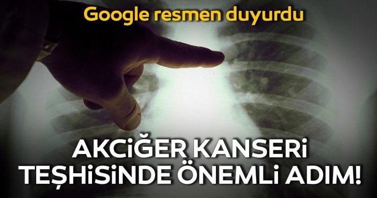 Google, Yapay Zeka İle Akciğer Kanserini Erken Teşhis Edebilecek