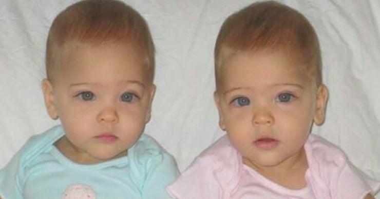 8 Sene Önce Dünyanın En Güzel İkizleri Söyleniyordu Şimdiki Halleri Görenler Şaşırıyor