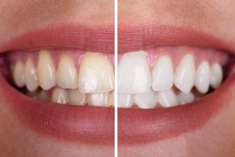 Bu Besinin Sayesinde Dişleriniz Anında Beyazlayacak