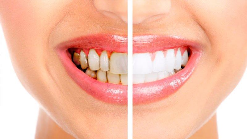 Dişlerdeki Plakları Yok Eden Yöntem