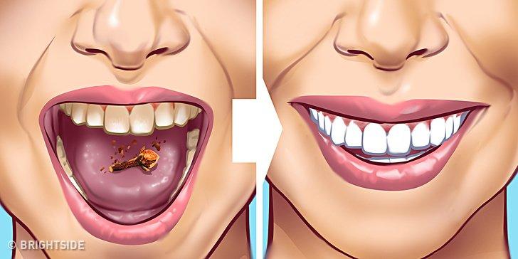 Tartar Lekelerini Dişlerinizden Çıkarmanın 10 Yolu
