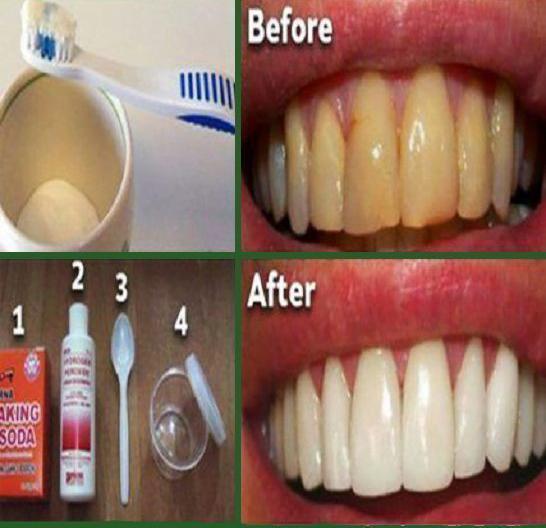 Bu Basit Yöntemler İle Dişlerinizi Beyazlatabilirsiniz