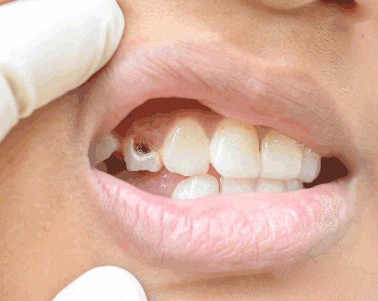 Bu Besini Dişlerinize Sürünce Diş Çürüğünü Ortadan Kaldırıyor