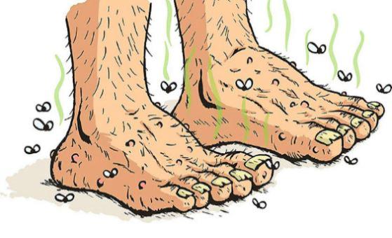 Ayak Kokusunu Bu Basit 10 Püf Noktayla Yenebilirsiniz
