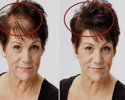 Saçlarınız Dökülüyor ise Bu Yöntemleri Bilmelisiniz