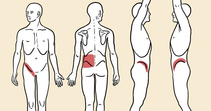 Vücudumuzda Böbrek Taşı Olduğunu Nasıl Anlarız ?