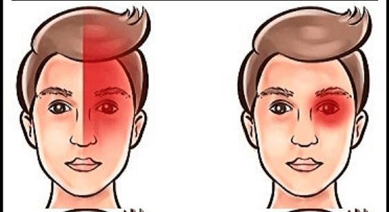 Baş Ağrınız Sağlığınız Hakkında Ne Açıklıyor ve Nasıl Tedavi Edilebilir?