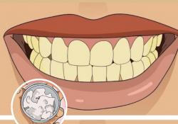 Sağlıklı Diş Etleri ve Beyaz Dişler İçin Ev Yapımı Diş Macunu Tarifi