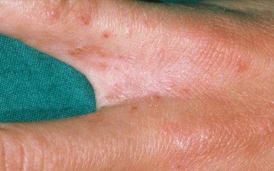 Bu Kaşıntılı ve Kırmızı Çok Ciddi Bir Cilt Hastalığı Olabilir