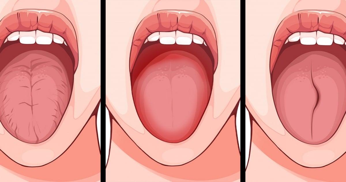 Dilinizin Sağlığınız Hakkında Açıklayabileceği 6 Şey