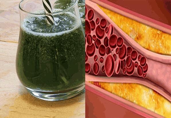 Sabahları 4 Kaşık Yemek Yetiyor Kolesterolü Bitiriyor