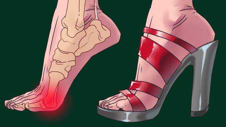 Kadınlar Topuklu Ayakkabı Giymenin Zararlarını Bilseler Bir daha Asla Topuklu Ayakkabı Giymezler