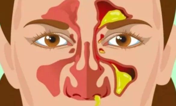 Sümüğünüzün Rengi Sağlığınız Hakkında Çok Ciddi Şeyler Söylüyor
