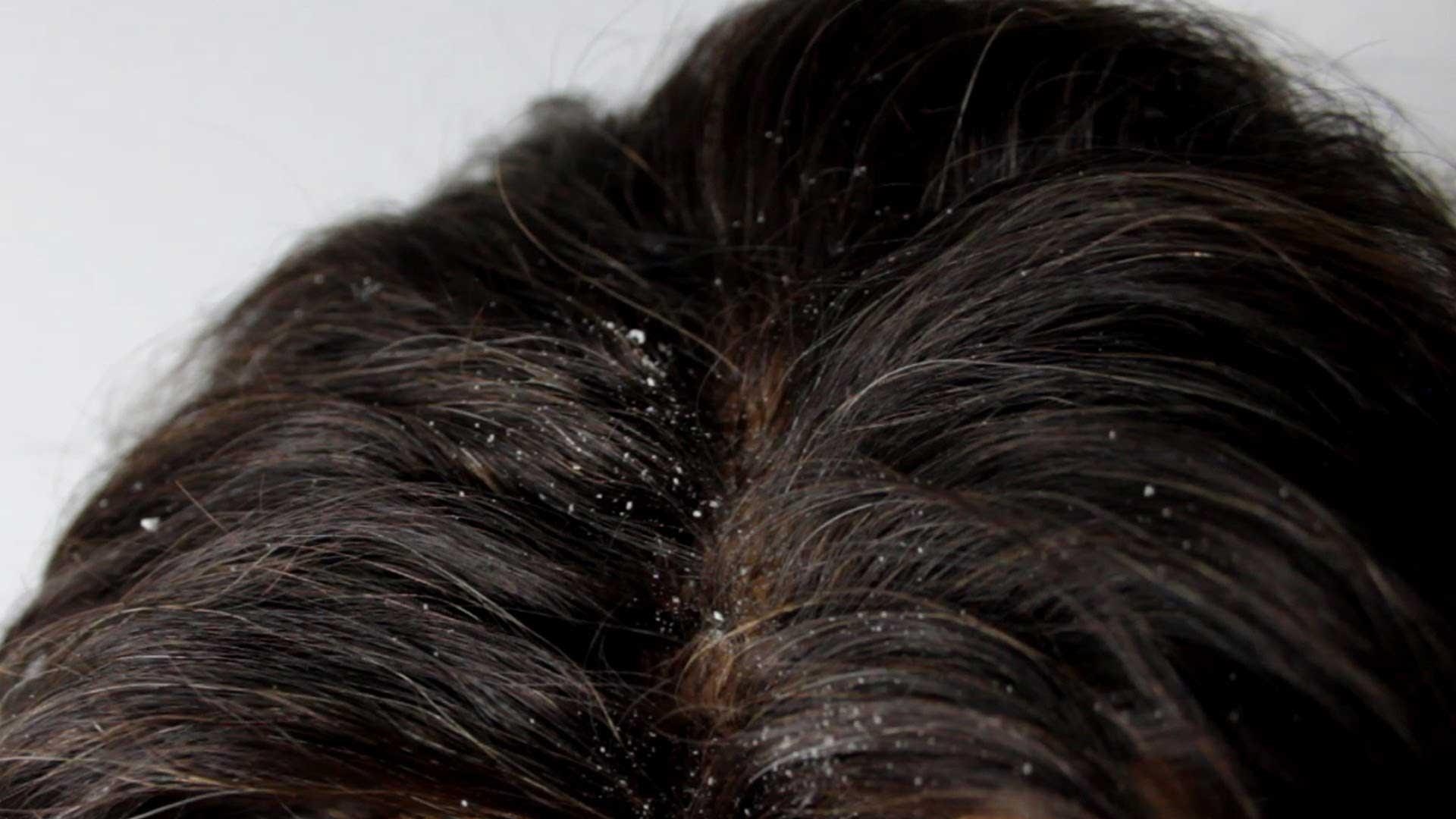 Saçlarda Oluşan Kepeğe Doğal Çözüm