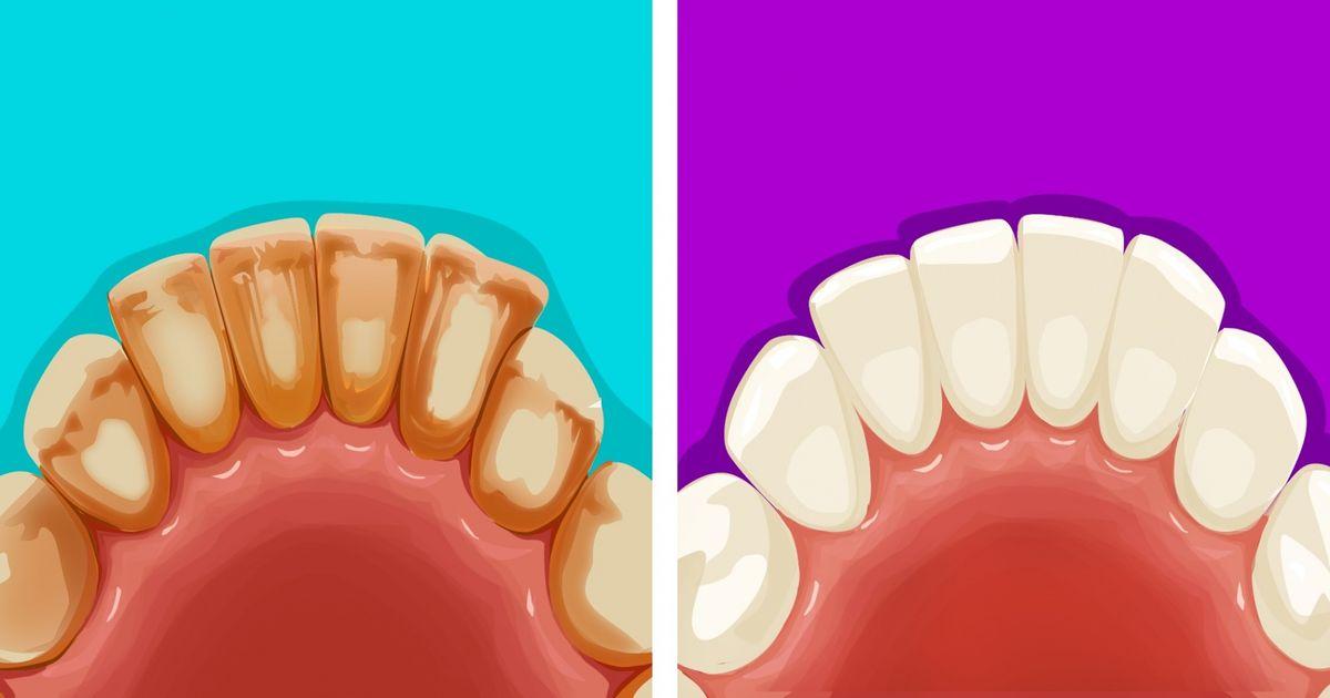 Dişlerinizdeki plakları çıkarmanın 6 yolu