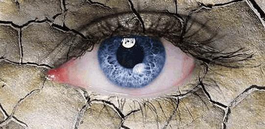 Kadınlarda Göz Kuruluğu Neden Olur ?