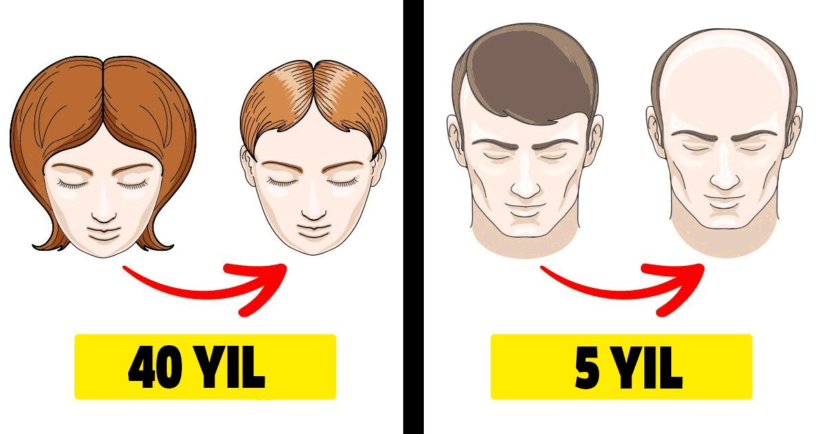 Erkeklerde ve kadınlarda görülen 8 farklı hastalığın farklı semptomları