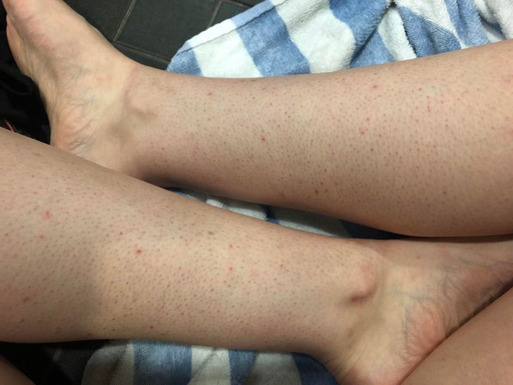 Bacaklarınızda yada vücudunuzda bu şekilde kızarıklıklar var ise işte çözümü
