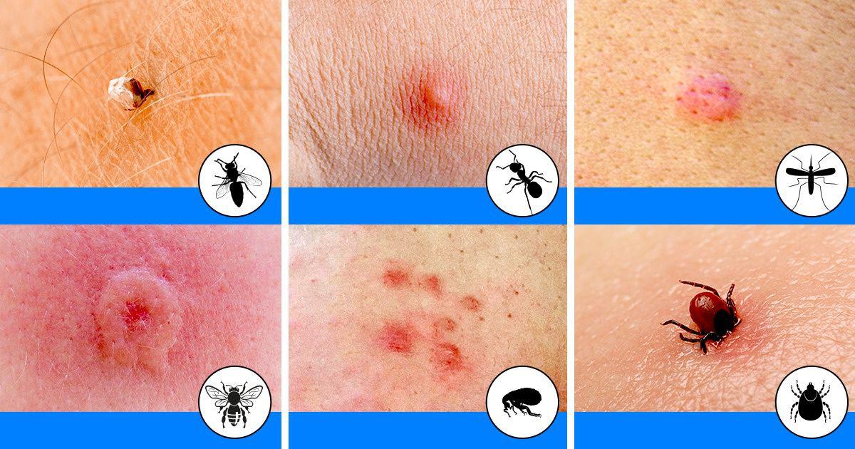 Herkesin Bilmesi Gereken Böcek ısırıkları Mutlaka Bilmelisiniz