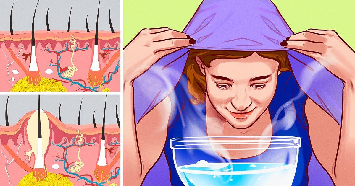 Haftada Bir Buhar Maskesi Yapın Cildinizdeki İnanılmaz Değişime Şahit Olun