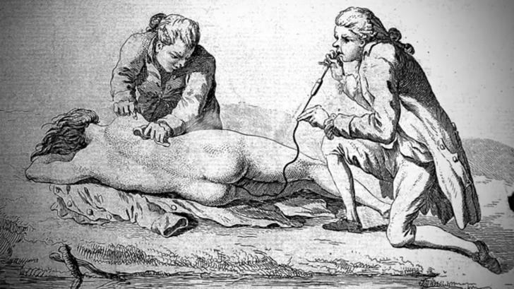 Geçmişte Sonsuza Kadar Kalması Gereken 8 Eski Tıbbi Tedavi
