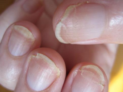 Tırnak Kırılması Yaşıyorsanız İşte Size Videolu Anlatım