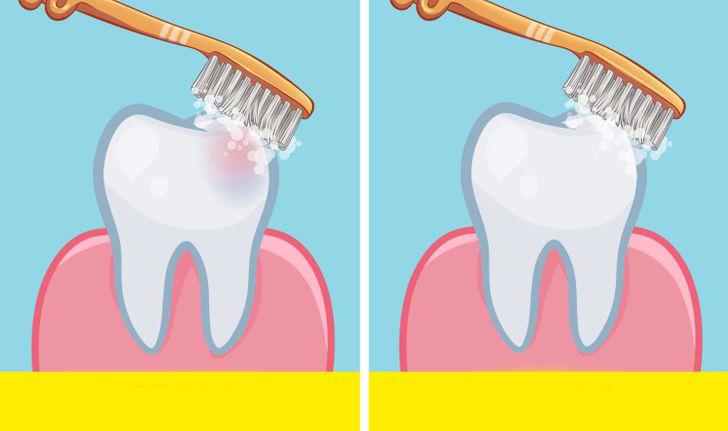 Dişlerimizi Yemekten Önce mi Yoksa Sonra mı Fırçalamalıyız İşte Cevabı