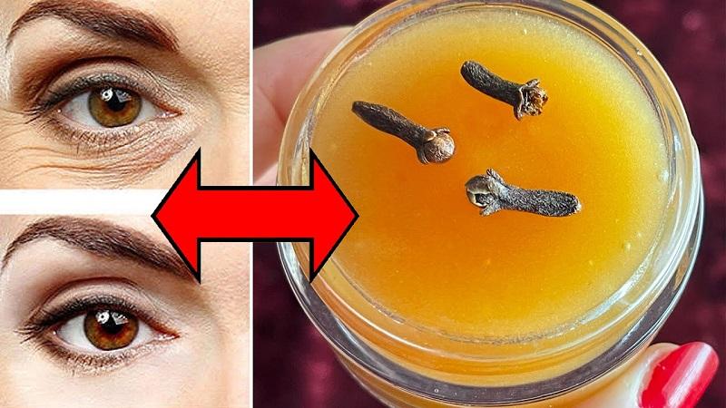 Korkulu rüyamız göz altı morlukları yok olacak Mucizevi karanfil kremi tarifi